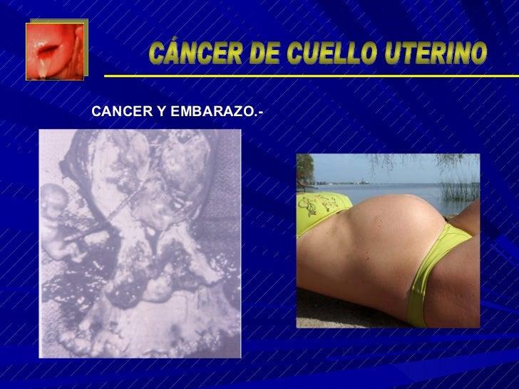 CANCER Y EMBARAZO.- CÁNCER DE CUELLO UTERINO