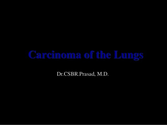 Carcinoma of the Lungs     Dr.CSBR.Prasad, M.D.