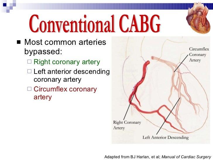 Coronary Artery Bypass Graft (CABG) - Desun Hospital Health Insight