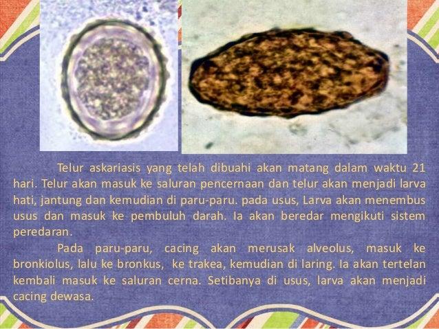 78 Gambar Telur Cacing Gelang Terlihat Keren