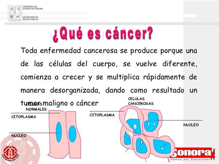 ¿Qué es cáncer? Toda enfermedad cancerosa se produce porque una de las células del cuerpo, se vuelve diferente, comienza a...