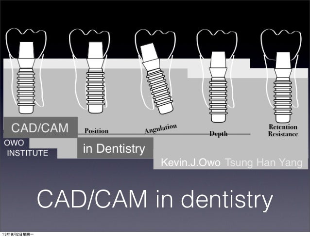 CAD/CAM in dentistry 13年9月2日星期一