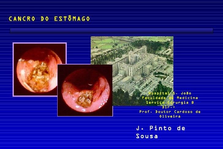 CANCRO DO ESTÔMAGO                         Hospital S. João                      Faculdade de Medicina                    ...