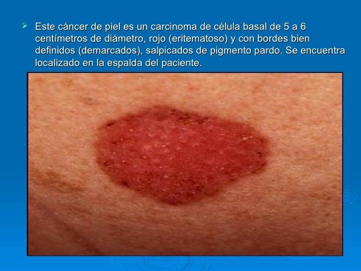 La vitamina y a la pigmentación de la piel