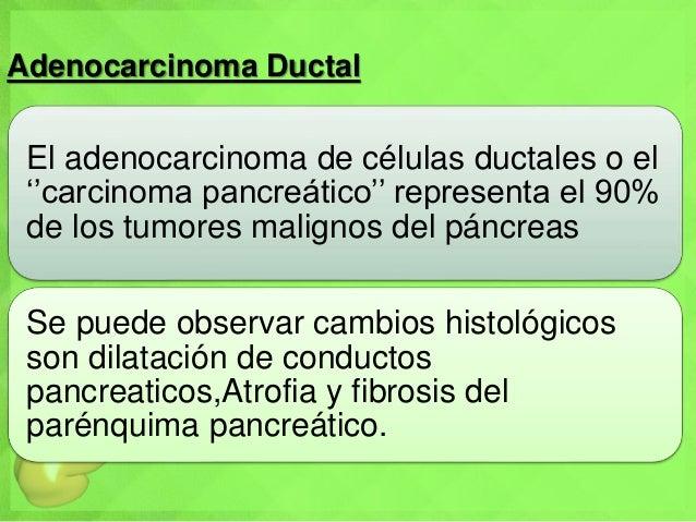 Adenocarcinoma Ductal El adenocarcinoma de células ductales o el ''carcinoma pancreático'' representa el 90% de los tumore...