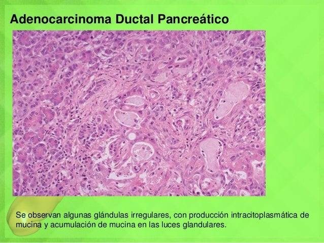 Adenocarcinoma Ductal Pancreático Se observan algunas glándulas irregulares, con producción intracitoplasmática de mucina ...