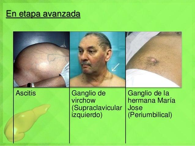 En etapa avanzada Ascitis Ganglio de virchow (Supraclavicular izquierdo) Ganglio de la hermana María Jose (Periumbilical)