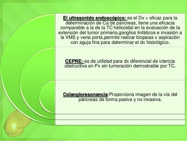 El ultrasonido endoscópico: es el Dx + eficaz para la determinación de Ca de páncreas, tiene una eficacia comparable a la ...