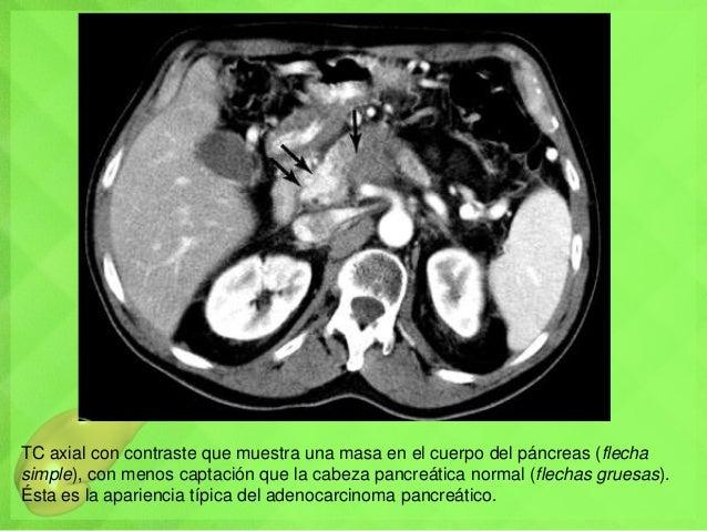 TC axial con contraste que muestra una masa en el cuerpo del páncreas (flecha simple), con menos captación que la cabeza p...