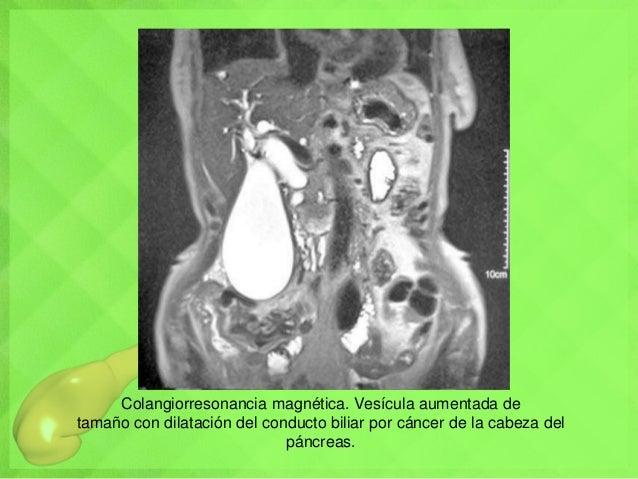 Colangiorresonancia magnética. Vesícula aumentada de tamaño con dilatación del conducto biliar por cáncer de la cabeza del...