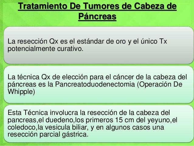 Tratamiento De Tumores de Cabeza de Páncreas La resección Qx es el estándar de oro y el único Tx potencialmente curativo. ...