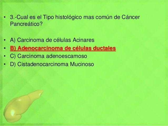 • 3.-Cual es el Tipo histológico mas común de Cáncer Pancreático? • A) Carcinoma de células Acinares • B) Adenocarcinoma d...