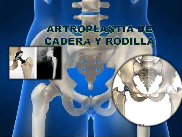 ARTROPLASTIA DE CADERA Definición Es una cirugía para reemplazar total o parcialmente la articulación de la cadera con un ...