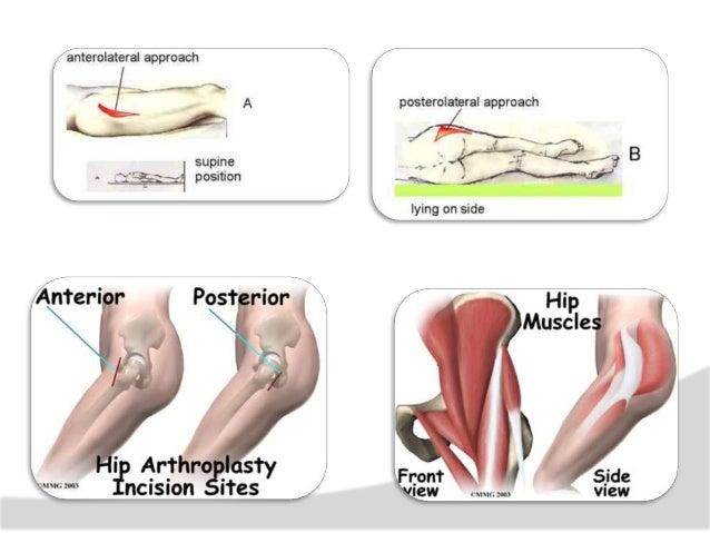 REHABILITACION ARTROPLASTIA TOTAL DE CADERA PROTESIS CEMENTADA En el caso de la fijación del implante femoral (vástago), c...