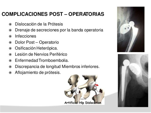 resp REHABILITACION EN ARTROPLASTIA DE CADERA (PROTESIS CEMENTADA) ETAPA 1 PRE - QUIRÚRGICO TVP. -Cambios prevenir UPP. n....