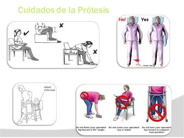 f REHABILITACION EN ARTROPLASTIA DE CADERA (PROTESIS CEMENTADA) ETAPA 3 : 3 A 6 SEM COMPLICACION -No flexión > aduccion y ...