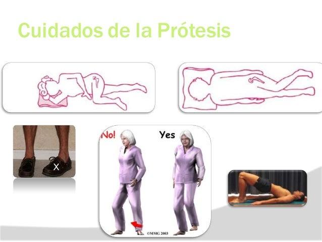REHABILITACION EN ARTROPLASTIA DE CADERA (PROTESIS CEMENTADA) ETAPA 4: 6 SEM A 3 MES 90°. sobrepeso. discrepancia -Corregi...