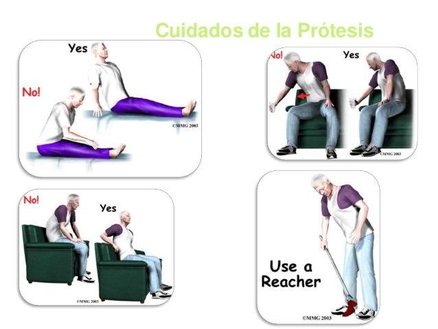 PROTESIS NO CEMENTADA