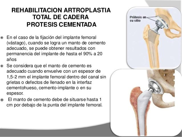 REHABILITACION EN ARTROPLASTIA DE CADERA (PROTESIS NO CEMENTADA) ETAPA 1 :PRE QUIRURGICO de TVP. para PO -Ejercicios toler...