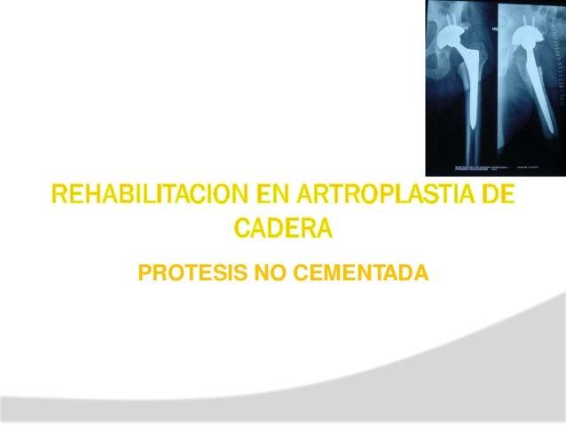 TIPOS DE ARTROPLASTIAS DE RODILLA