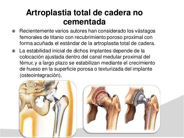 ARTROPLASTIA UNICOMPARTIMENTAL RODILLA DE  Estos tipos de artroplastias comenzaron en 1950 con la introducción de la prót...