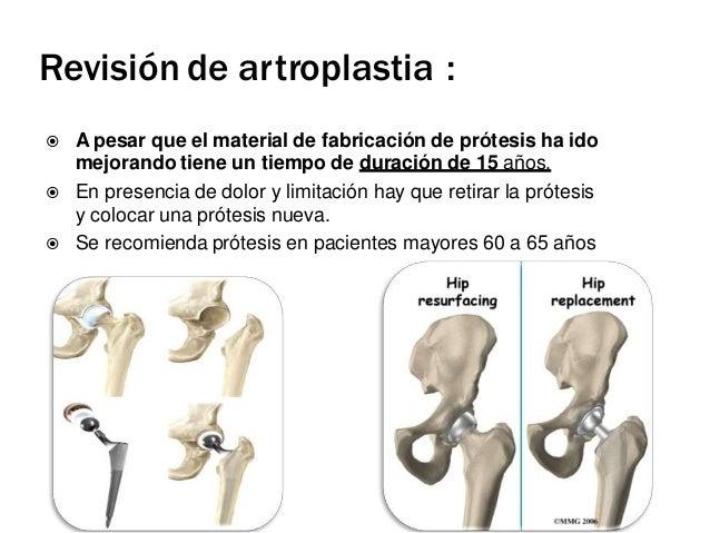 TIPOS DE PROTESIS CADERA DE  PROTESIS TOTAL DE CADERA .  PROTESIS PARCIAL (hemiartroplastia ) Artroplastia cementada: es...