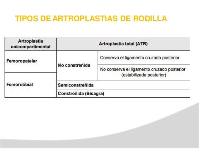 Causas de Contracturas en las Artroplastias de Rodilla Inadecuado balance blandos. de tejidos Prótesis de tamaño inadecuad...