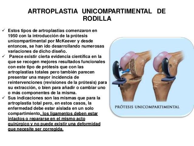 REHABILITACION ENARTROPLASTIA DE RODILLA CEMENTADA quirurgico Tiempo aprox: ETAPA I: Pre 0-4 SEMANAS normal . caminata lig...