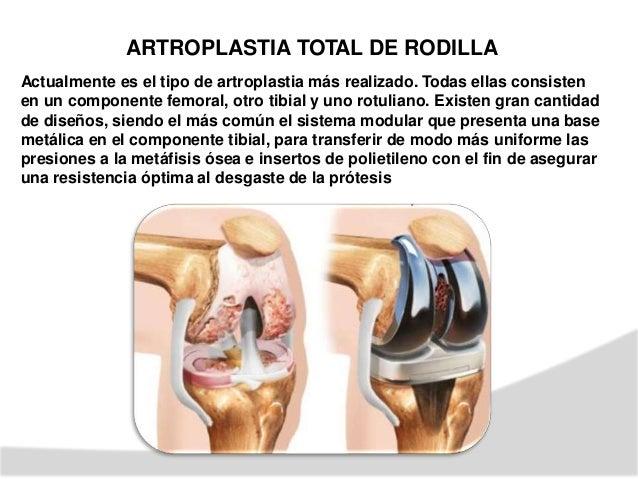 REHABILITACION ENARTROPLASTIA DE RODILLA CEMENTADA Tiempo aprox: – 3 SEMANAS ETAPA II 0Post quirurgico. Complicac prevenir...