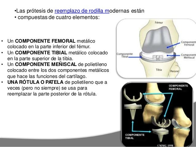 REHABILITACION EN ARTROPLASTIA DE Tiempo aprox:RODILLA quirurgico NO CEMENTADA ETAPA I: Pre 0-4 SEMANAS traslados , preven...