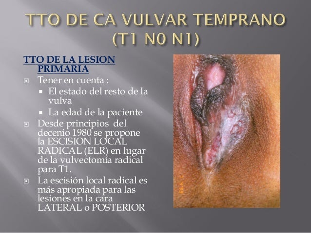 Vulvar Cancer Symptoms  Vulvar Cancer