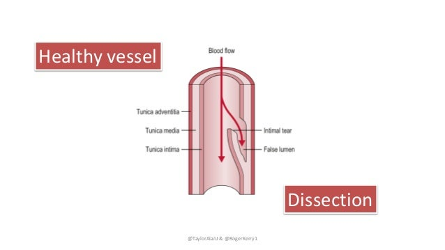 @TaylorAlanJ & @RogerKerry1 Healthy vessel Dissection