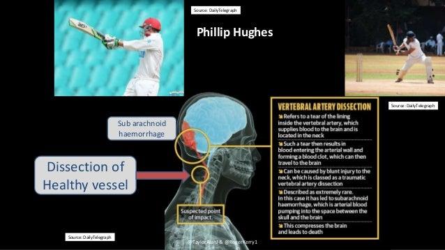 Source: DailyTelegraph Source: Daily Telegraph Phillip Hughes @TaylorAlanJ & @RogerKerry1 Sub arachnoid haemorrhage Dissec...