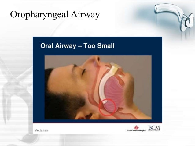 Airway management presentation