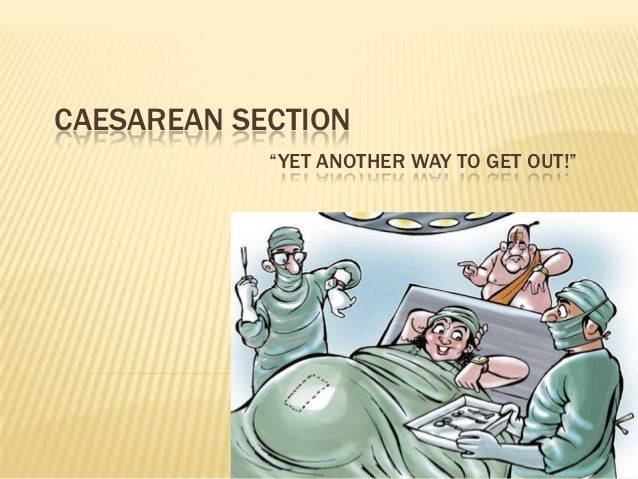 """CAESAREAN SECTION            """"YET ANOTHER WAY TO GET OUT!"""""""