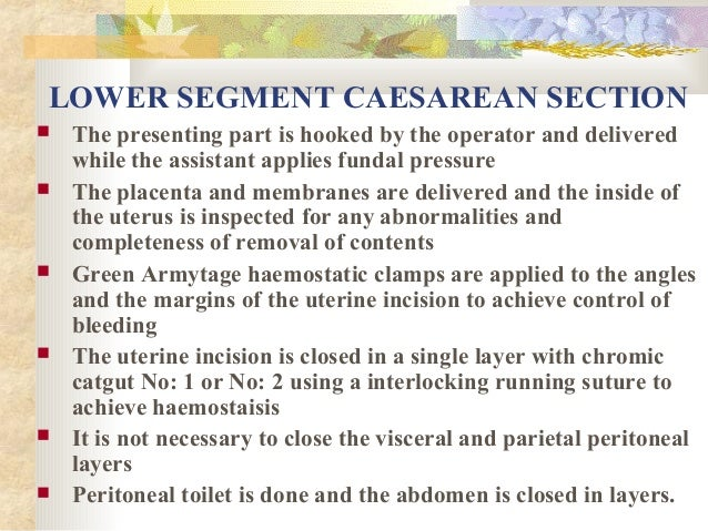 LOWER SEGMENT CAESAREAN SECTION           The presenting part is hooked by the operator and delivered while the assi...