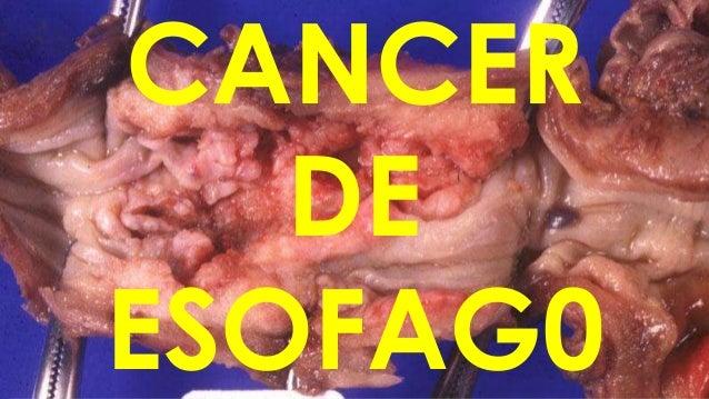 CANCER DE ESOFAG0