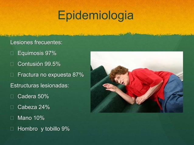 Epidemiologia Lesiones frecuentes:  Equimosis 97%  Contusión 99.5%  Fractura no expuesta 87% Estructuras lesionadas:  ...