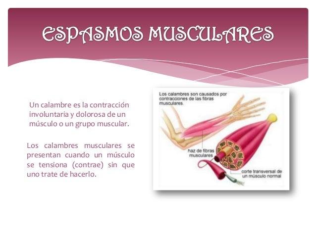 Calambres musculares- Espasmos musculares