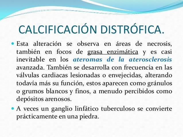 Calcificacion Distrofica Pdf