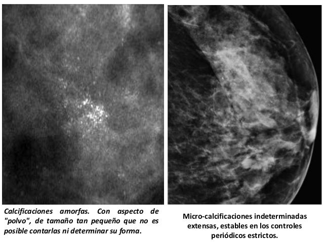 Calcificaciones mamarias causas s ntomas y tratamiento