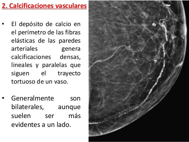 CALCIFICACIONES EN MAMOGRAFIA PDF