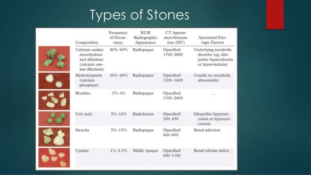 the different forms in which concretion forms If you've been looking around trying to find a lawyer to help you solve your specific legal problem, you've probably realized by now there are many different types of lawyers.
