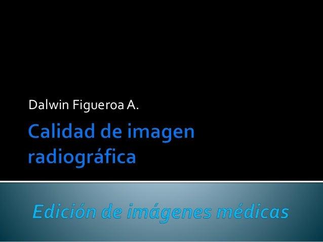 Dalwin FigueroaA.