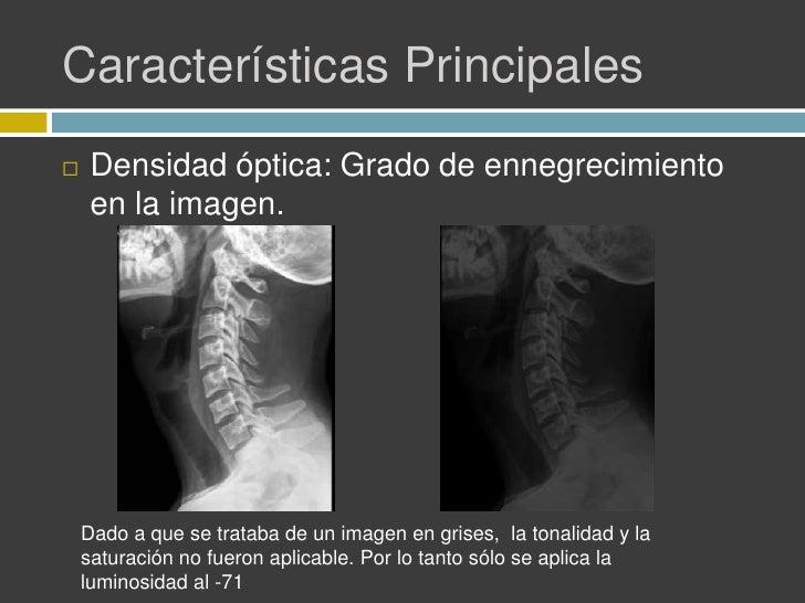 Calidad de imagen en radiología