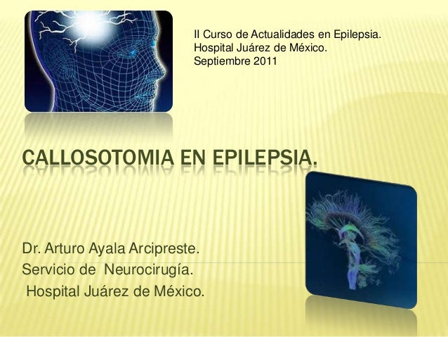 CALLOSOTOMIA EN EPILEPSIA. Dr. Arturo Ayala Arcipreste. Servicio de Neurocirugía. Hospital Juárez de México. II Curso de A...