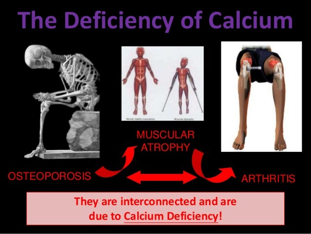 a description of osteoporosis and how it is related to a deficiency of calcium Symptoms of serious calcium deficiency include numbness and tingling in can cause calcium depletion and eventually osteoporosis when people use them for months.