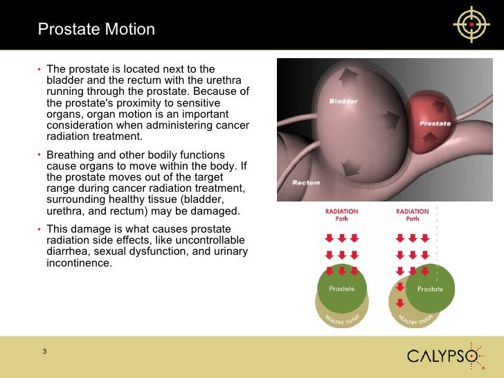 Calypso Prostate Radiation Treatment