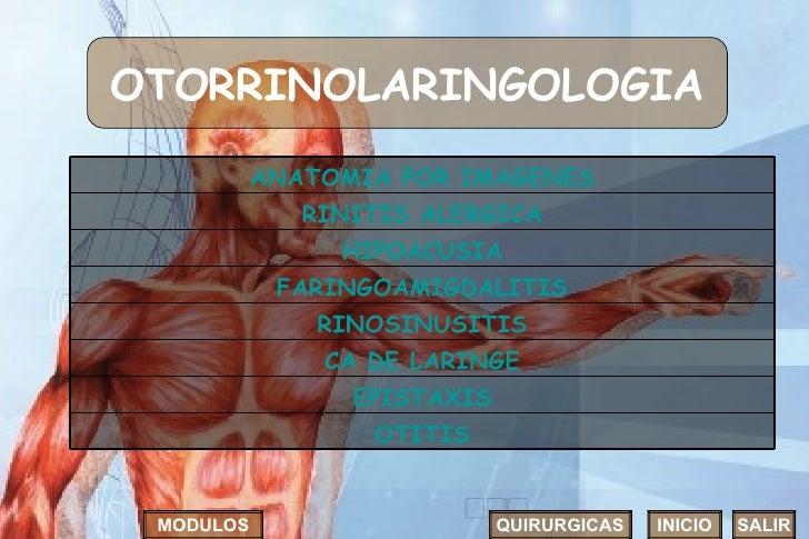 OTORRINOLARINGOLOGIA INICIO SALIR MODULOS QUIRURGICAS FARINGOAMIGDALITIS RINOSINUSITIS ANATOMIA POR IMAGENES RINITIS ALERG...