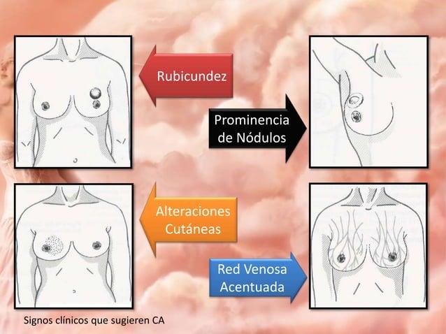 BENIGNOS Piel de grosor y caracteres normales Pezón en su sitio normal Vasos sanguíneos de calibre normal Conductos normal...
